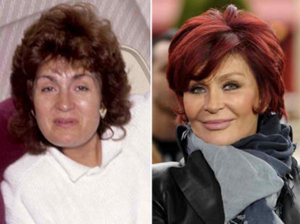 stars-who-took-plastic-surgery-too-far-1573281138-mar-16-2014-1-600x448